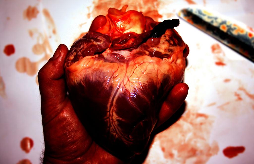 слева показывают сердце в руках хирурга картинки этой спасённой